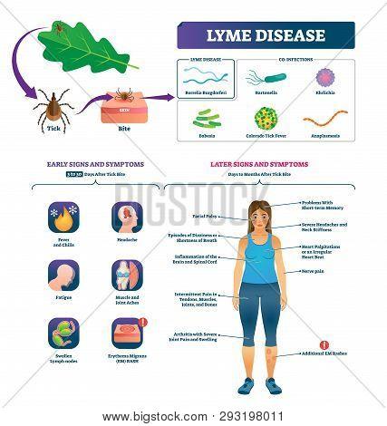 Lyme Disease Vector Illustration. Labeled Tick Bite Infection Symptoms Scheme. Educational Collectio