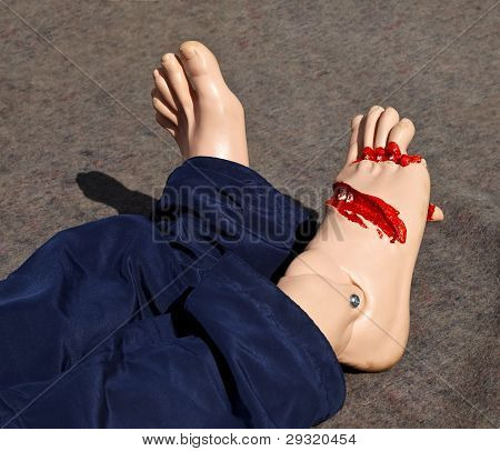 Mannequin With Injury
