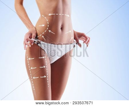Women Slim Body In Swimwear Having Arrows Along Her Stomach And Legs. Fat Lose, Liposuction And Cell