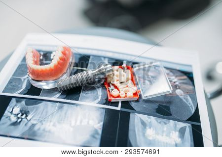 Dentures and pins on the table, dental prostheses