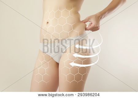 Female Body Closeup Highlighted With Modular Grid Showing Figure Transformations / Anti-cellulite Th