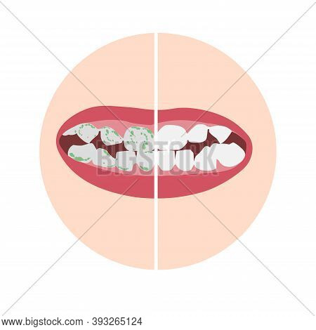 Plaque Disclosure Tablets At Work. Before And After - The Effect. White Healthy Teeth And Teeth With