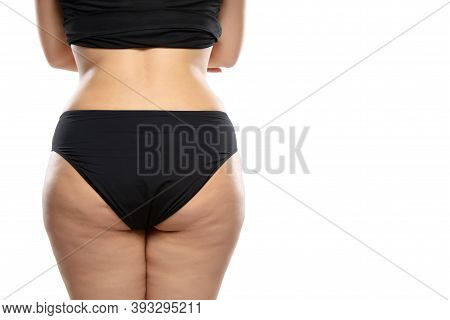 Back View. Overweight Woman With Fat Cellulite Legs And Buttocks, Obesity Female Body In Black Under