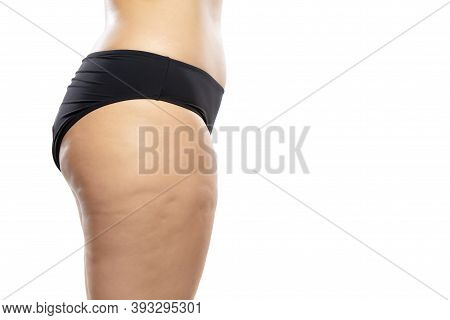 Side View. Overweight Woman With Fat Cellulite Legs And Buttocks, Obesity Female Body In Black Under