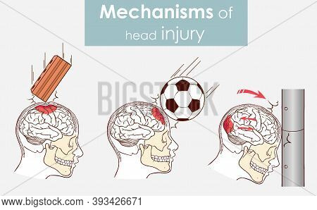 Vector Illustration Of A Mechanisms Of Head Injury