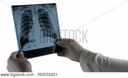 Lung X-ray Isolated On White, Picture Of Human Lungs, Doctor Holding X-ray.