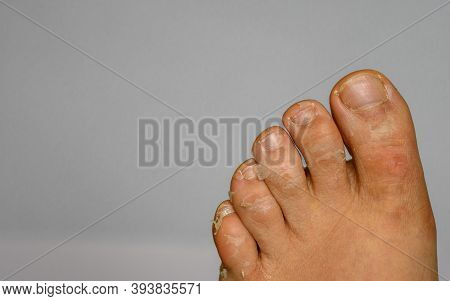 Man Foot Toes Skin Exfoliation. Toes Closeup Photo With White Background. Flaky Itchy Skin