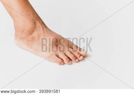Hallux Valgus, Big Abnormal Feet Bones Of Female Feet On White Background.