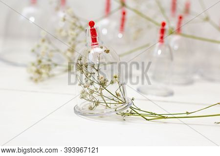Jars For Hijama On A White Wooden Background And White Flowers. Bloodletting. Sunnah Treatment. Isla