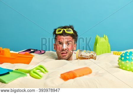 Beach Summer Vacation. Displeased Guy Got Sunburn, Applies Sunscreen Lotion, Feels Thirsty During Ve