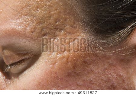 Girl with acne scars on temples and cheekbones poster