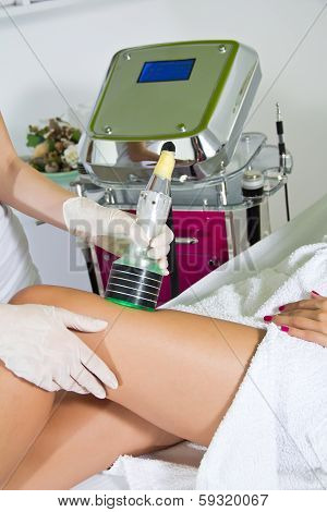 Cavitation Treatment