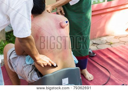 The Teacher Demonstrate Guasa And Skin Vacuum Technique Which Is The Alternative Medicine  For Skin