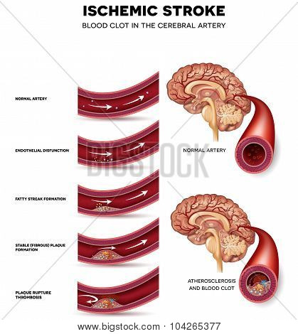 Blood Clot Formation In The Cerebral Artery
