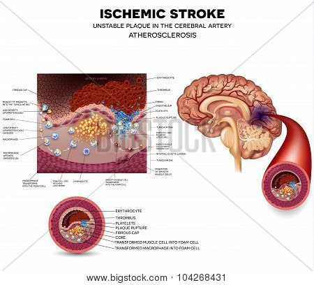 Unstable Plaque Formation And Thrombus