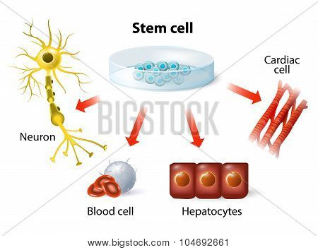 stem cell application. Using stem cells to treat disease poster