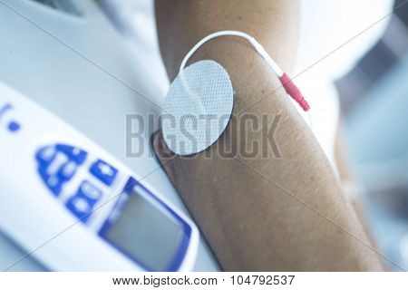 Patient hand arm wrist in electro physiotherapy electrical impulse stimulation rehabiliation treatment from injury in hospital clinic with electrical stimulus attached with plaster. poster