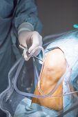 Traumatology orthopedic surgery hospital emergency operating room prepared for knee torn meniscus arthroscopy operation photo of drip fluids tube. poster
