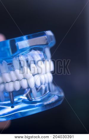 Dentistry Teaching Tooth Model