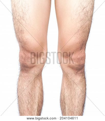 Closeup legs men skin and hairy with white background health care and medical concept