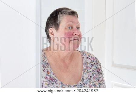 Rosacea, Facial Skin Disorder, Portrait Of Unhappy Elderly Woman In Mirror