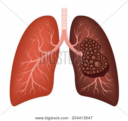 healthy lung and cancer lung vector on white background
