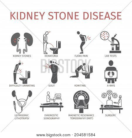 Kidney stones. Symptoms, Treatment. Icons set. Vector signs for web graphics