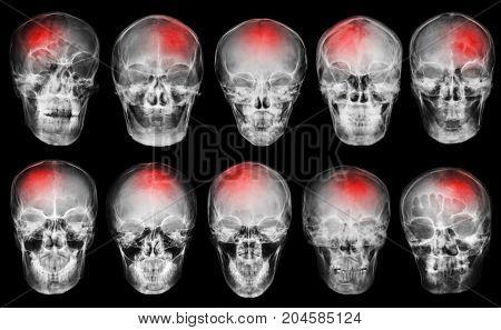 Stroke . Cerebrovascular Accident . Set Of Film X-ray Skull