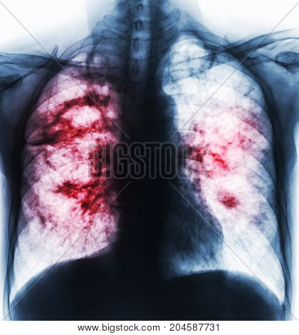 Pulmonary Tuberculosis . Film X-ray Of Chest Show Cavity At Right Lung And Interstitial Infiltrate B