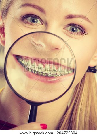 Happy Woman Showing Her Braces In Magnifying Glass