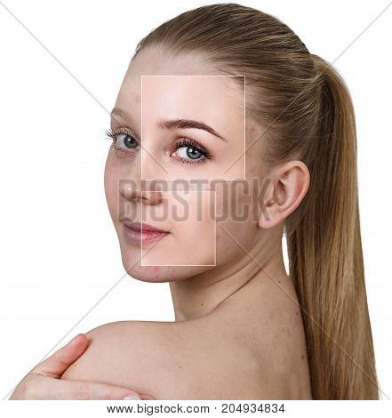Square parts shows woman's face before and after treatment and makeup.