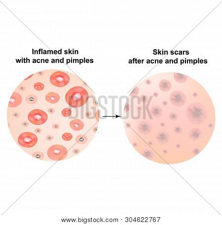 Types Of Blackheads, Pustule, Acne. Scarred Skin After Acne And Acne. Infographics. Vector Illustrat