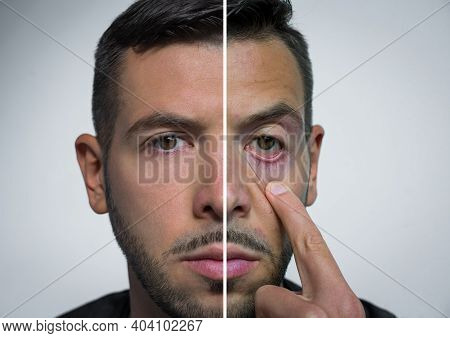 Man Face Divided Into Two Parts One Fresh And One With Hangover. Before Party And After Party. Alcoh