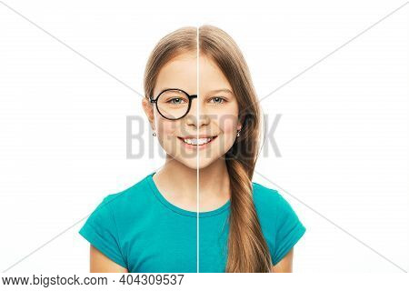 Caucasian Girl With Eyeglasses And Without Glasses. Choose Contact Lenses For Vision Correction. Pho