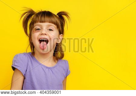Close-up Of Laughing Funny Little Bad Girl With Bruised Eye Showing Her Tongue, Looking At Camera On