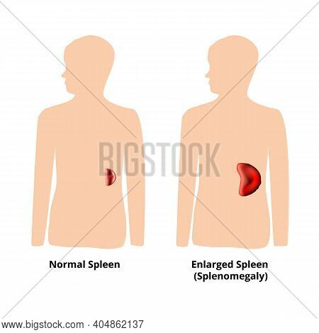 Splenomegaly Of The Spleen. Enlargement Of The Spleen. Illustration On Isolated Background
