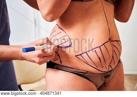 Close Up Of Surgeons Hand Drawing Marks On Patient Skin Of Fat Woman In Underwear Before Plastic Sur