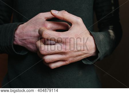 Closeup Men Itching And Scratching By Hand. Psoriasis Or Eczema On The Hand. Atopic Allergy Skin Wit