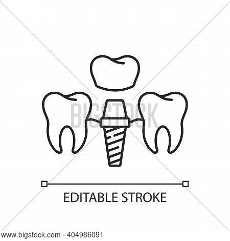 Dental Implants Procedure Linear Icon. Tooth Recovery Process. Dental Surgety. Thin Line Customizabl
