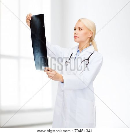 healthcare, medicine and radiology concept - serious female doctor looking at x-ray