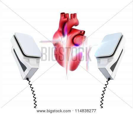 Conceptual Image Of The Model Heart And The Discharge Of Defibrillation On A White Background. 3D Il