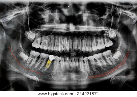 Digital X-ray Of Jaw With Implant Tooth