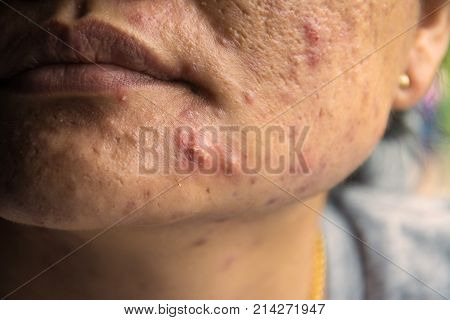 Acne skin problem on woman surface skin background