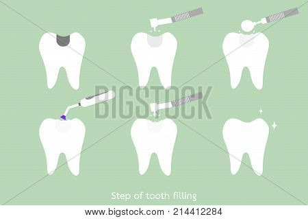 Step Of Caries To Tooth Amalgam Filling With Dental Tools