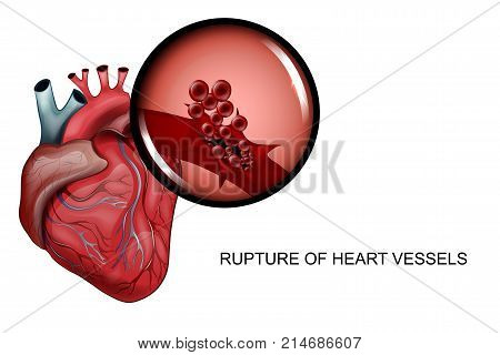 vector illustration of a rupture of the vessels of the heart