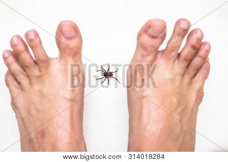 Brown Spider Attacking Person. Venomous Spider Biting Foot, Spider Bite, Bite Of Venomous Animal. Ar