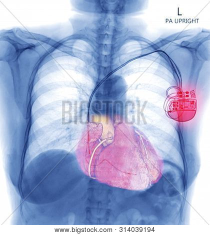 Chest X-ray Or X-ray Image Of Human Chest With Pacemaker Placement Or Cardiac Pacemakers For Control