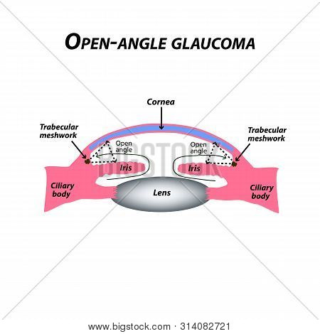 Open-angle Glaucoma. A Common Type Of Glaucoma. The Anatomical Structure Of The Eye. Infographics. I