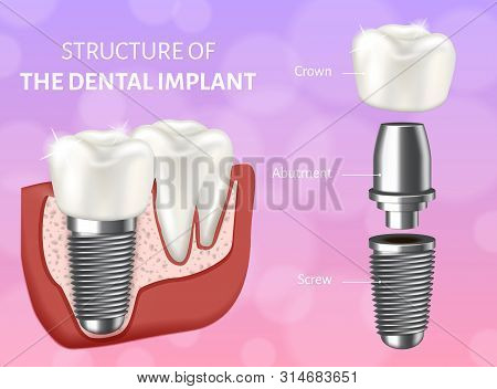 Vector Illustration Depicting The Structure Of The Dental Implant. Design Concept Of The Dental Impl