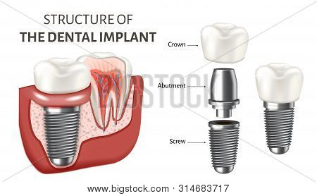 Educational Poster Showing A Structure Of The Dental Implant. Vector Illustration Isolated On The Wh